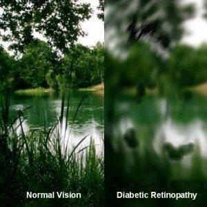 Diabetic retinopathy_web