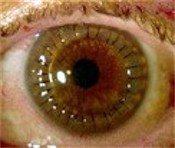 corneal_transplant