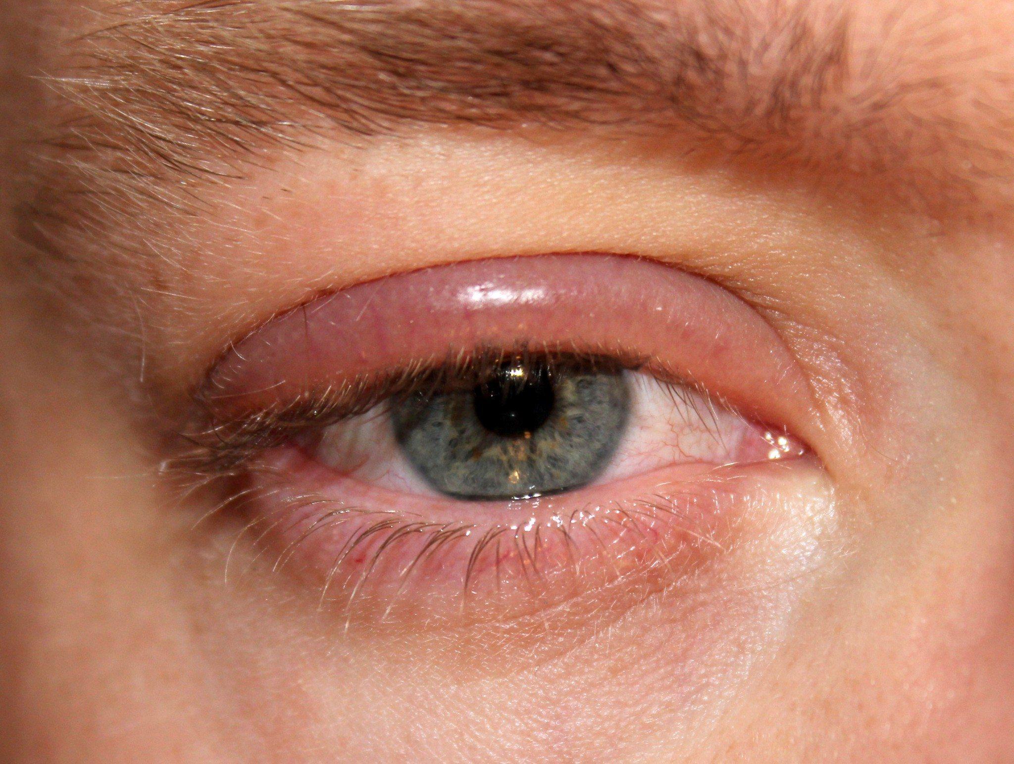 Blepharitis - CarlinVision